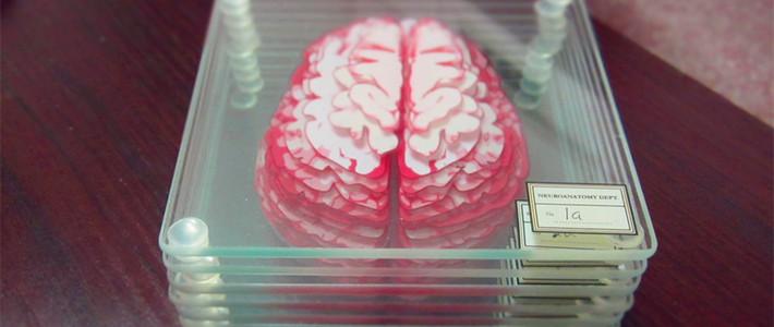 【奇葩物】#原创新人#第一次晒单 Brain Specimen Coasters大脑标本茶杯垫