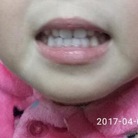 婴幼儿牙齿护理二三事