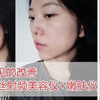 护肤仪器大作战 篇五:肉眼可见的改善—娜蜜丝 射频美容仪+嫩肤仪 使用感受(多图真人示范)