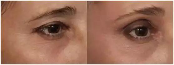 不让细纹泄露你的年龄,眼部抗衰这样选~