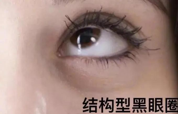 口罩时代拼眼妆!关于黑眼圈的常识你了解多少?!
