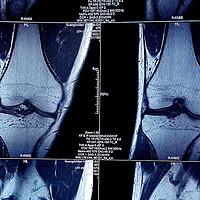 为了保护膝盖,我买了5对护膝,还拆了一个山寨保而防看看区别