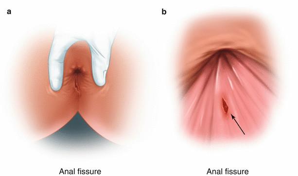 """第一次坐诊普外科:我遇到一个""""肛裂""""的姑娘"""